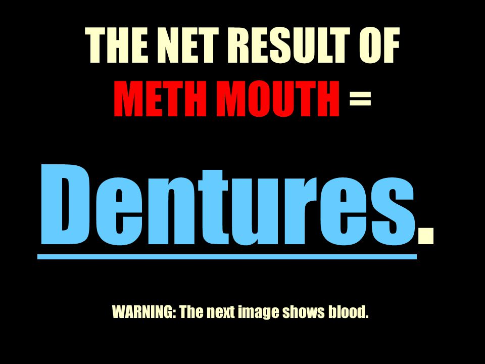 Dentures. THE NET RESULT OF METH MOUTH =