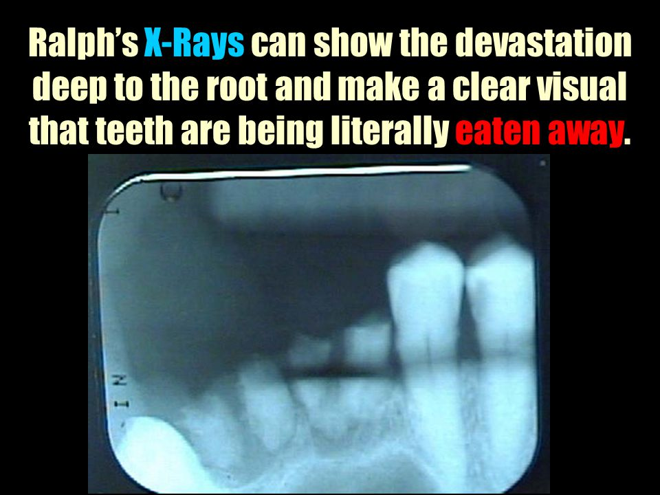 Ralph's X-Rays can show the devastation deep to the root and make a clear visual that teeth are being literally eaten away.