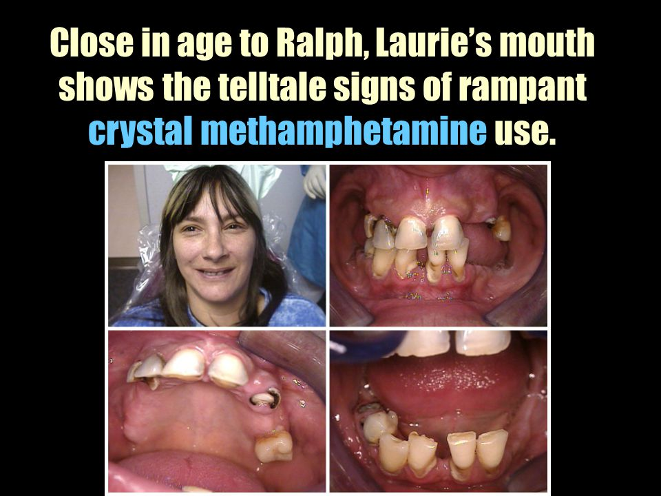 Close in age to Ralph, Laurie's mouth shows the telltale signs of rampant crystal methamphetamine use.