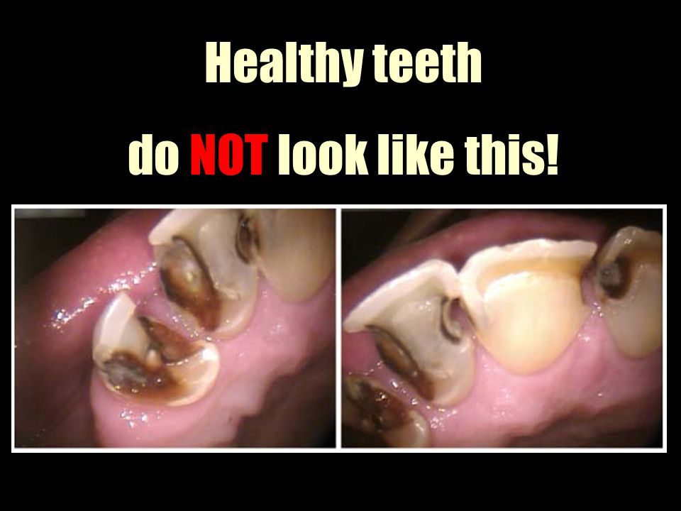 Healthy teeth do NOT look like this!