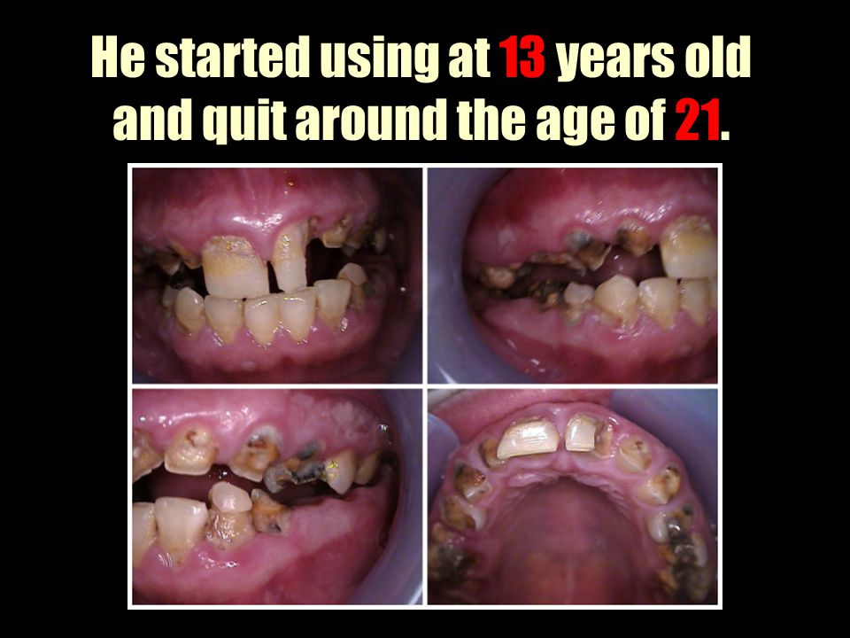 He started using at 13 years old and quit around the age of 21.