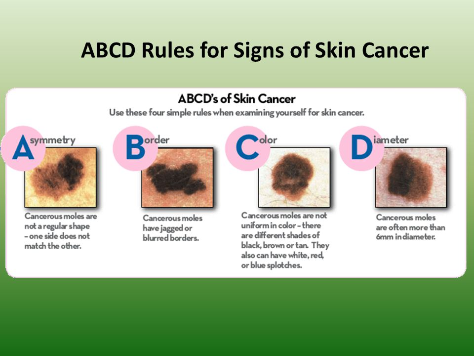 ABCD Rules for Signs of Skin Cancer
