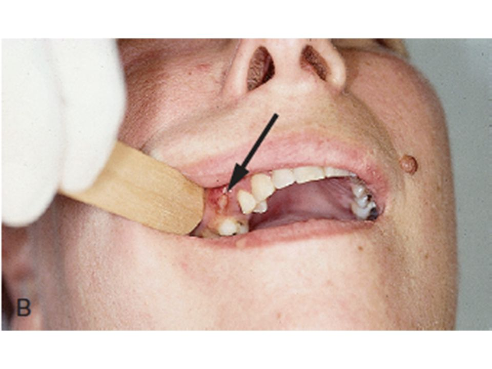 Here we can see what looks like a localized and accessible gingival abscess.