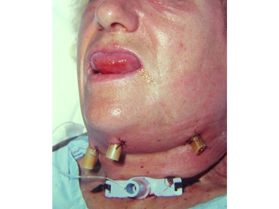 This is an example of a patient with Ludwig's angina, post tracheostomy and surgical drain placement.