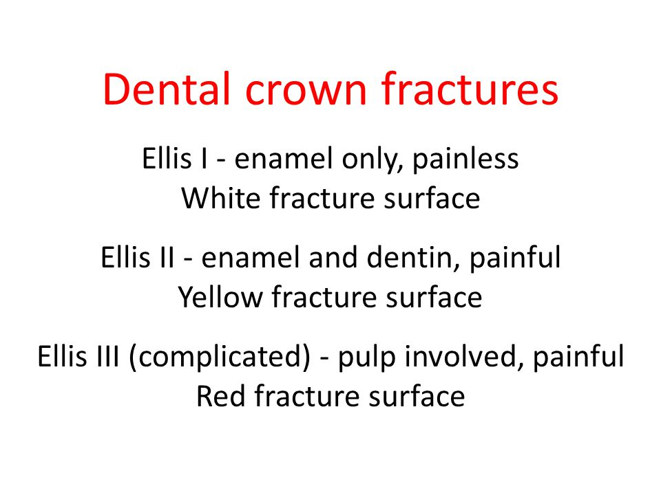 Dental crown fractures