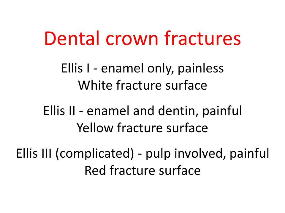 Dental crown fractures
