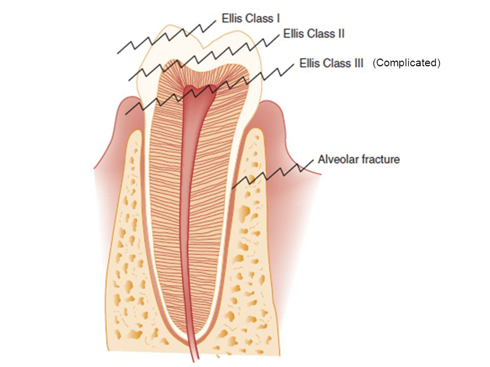 (Complicated) Here is a diagrammatic depiction of the dental crown fractures we have discussed.