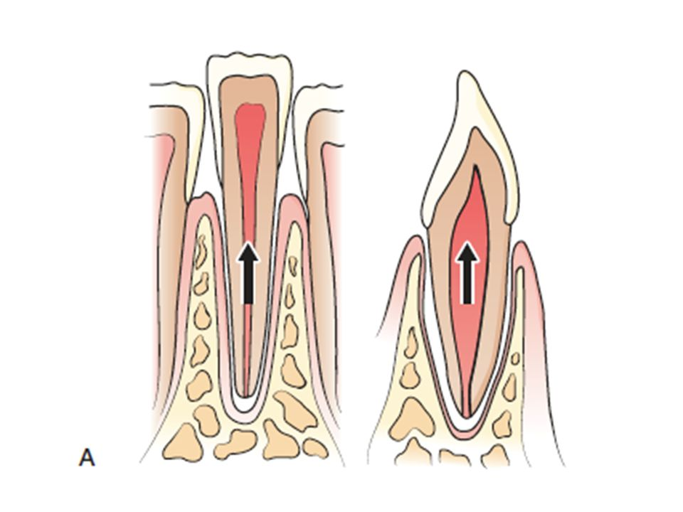 This is an example of extrusive luxation, with the tooth being pulled from the socket in an axial direction.