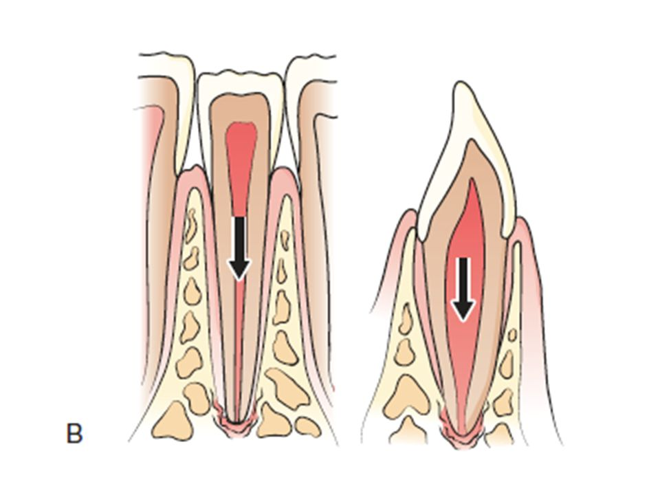 This is an example of intrusive luxation, where the tooth is being forced into the socket in an axial direction.