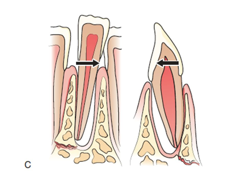 This image shows lateral luxation and a commonly associated alveolar bone fracture.