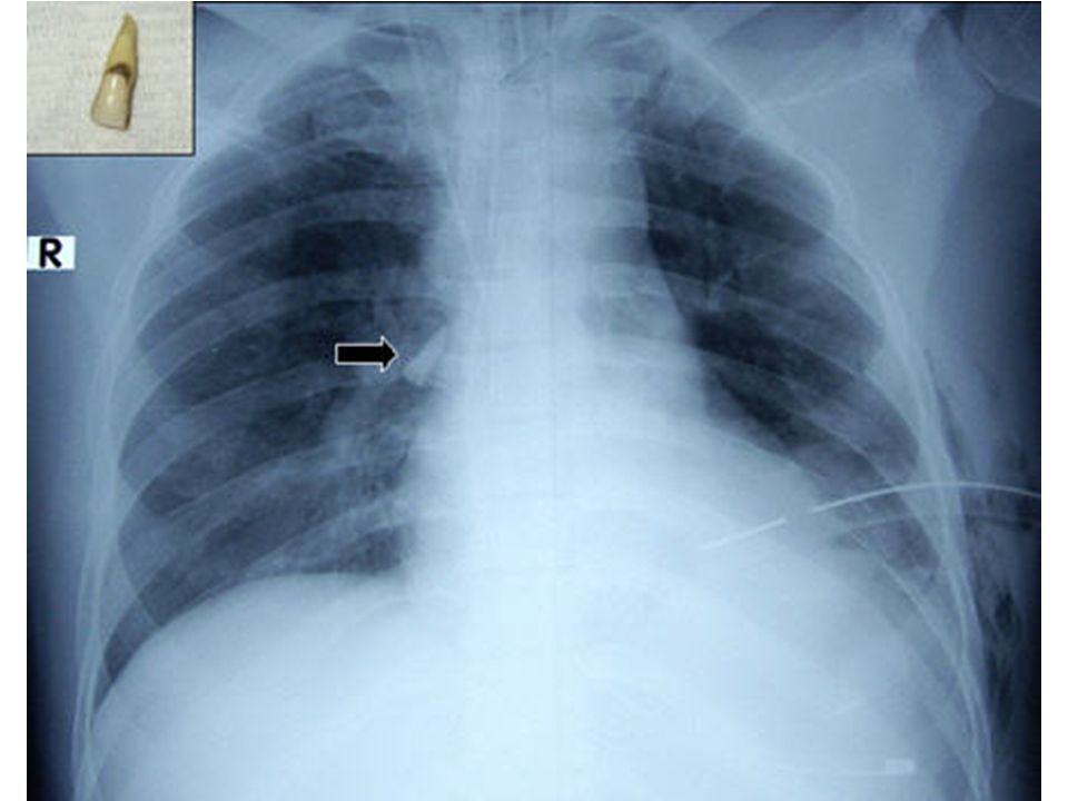 Here is a CXR of a polytrauma patient with significant facial injury