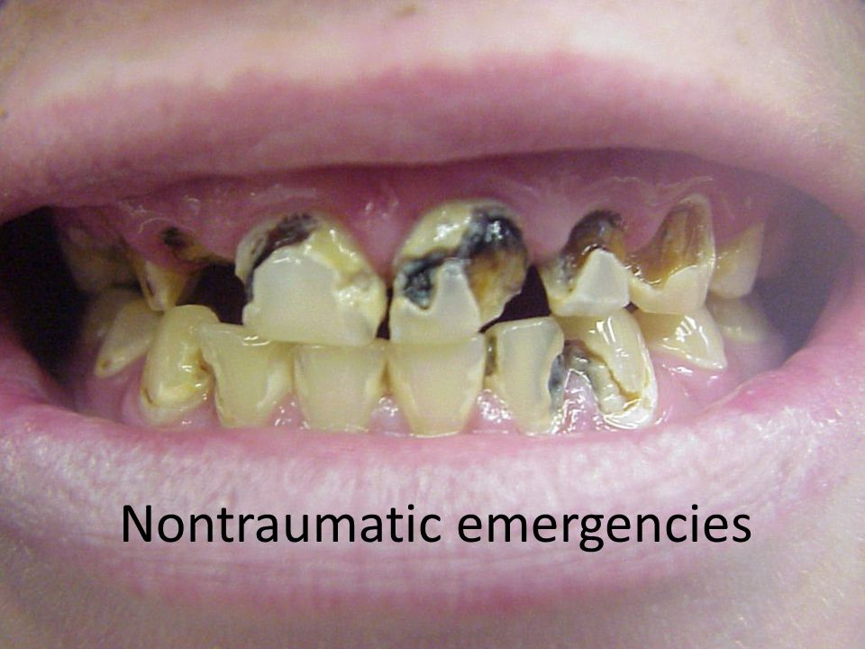 Nontraumatic emergencies