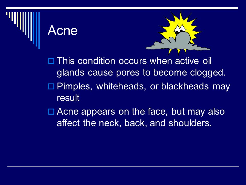 Acne This condition occurs when active oil glands cause pores to become clogged. Pimples, whiteheads, or blackheads may result.