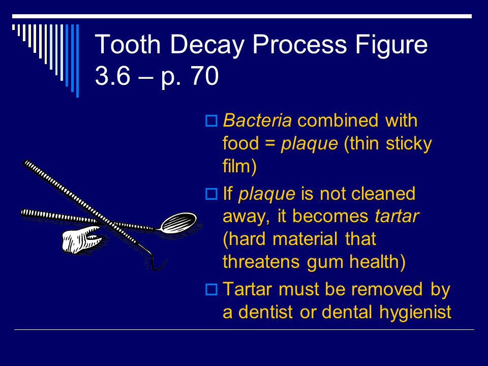Tooth Decay Process Figure 3.6 – p. 70