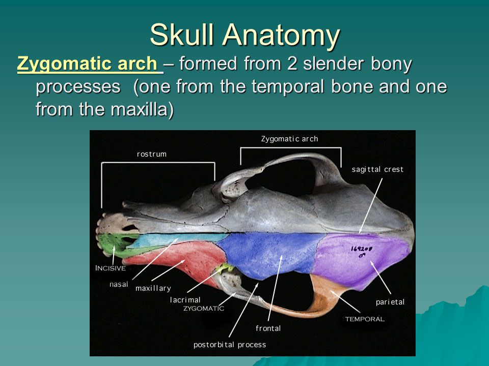 Skull Anatomy Zygomatic arch – formed from 2 slender bony processes (one from the temporal bone and one from the maxilla)