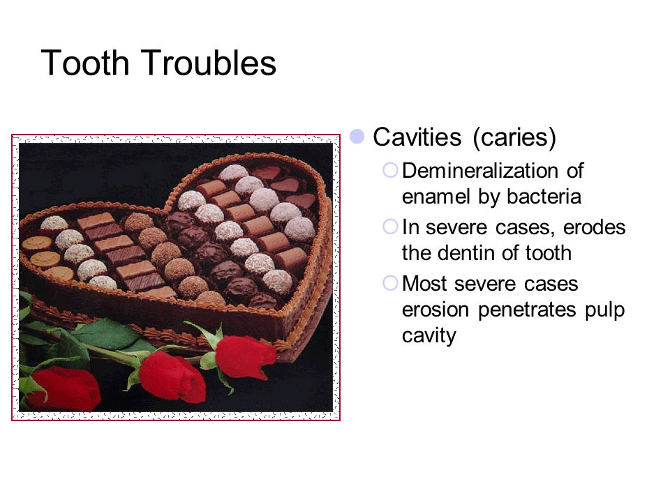 Tooth Troubles Cavities (caries)
