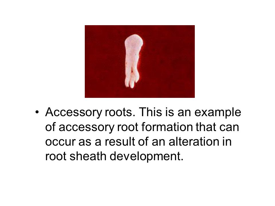 Accessory roots.