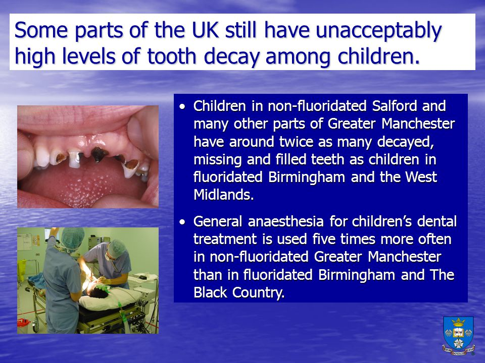 Some parts of the UK still have unacceptably high levels of tooth decay among children.