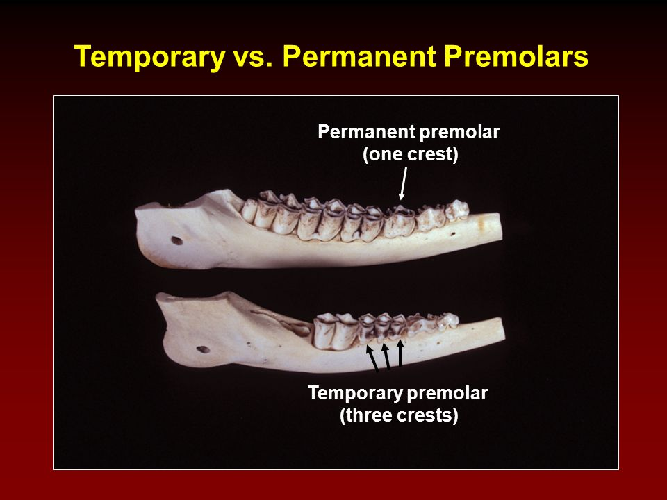 Temporary vs. Permanent Premolars