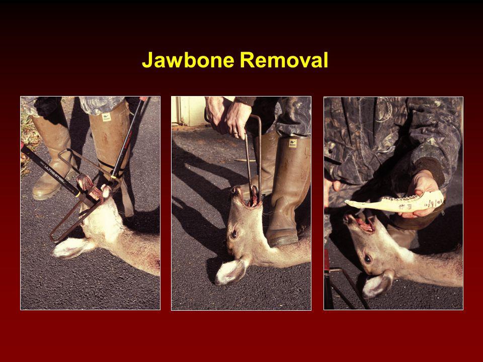 Jawbone Removal