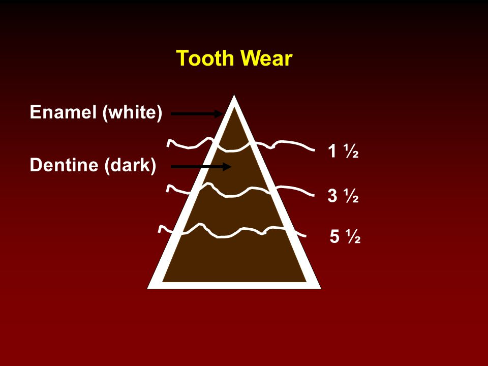 Tooth Wear Enamel (white) 1 ½ Dentine (dark) 3 ½ 5 ½