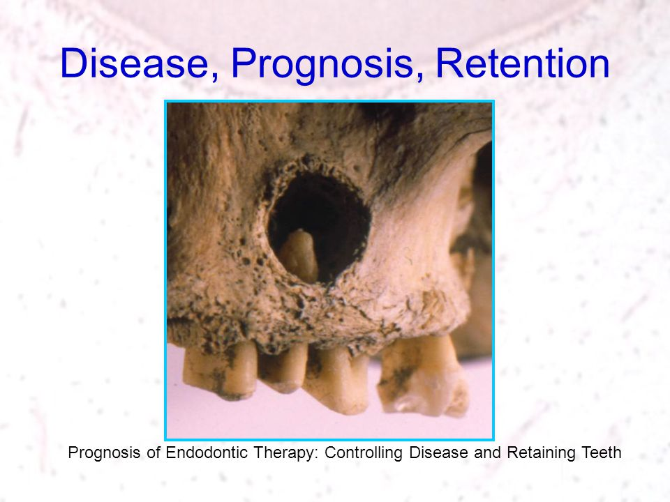 Disease, Prognosis, Retention