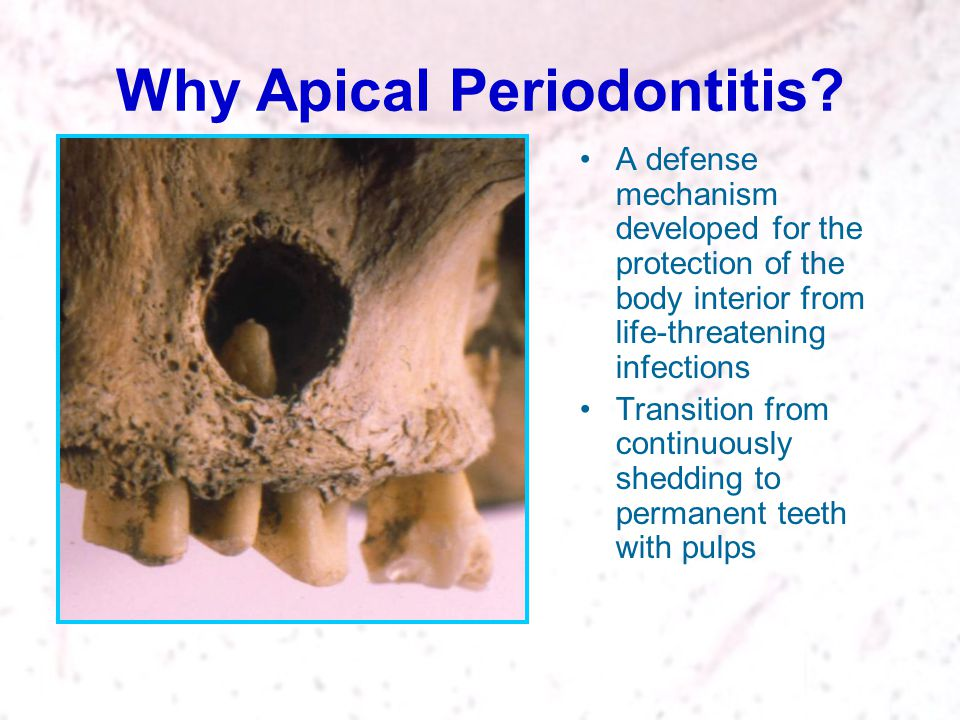 Why Apical Periodontitis