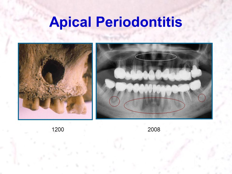 Apical Periodontitis 1200 2008