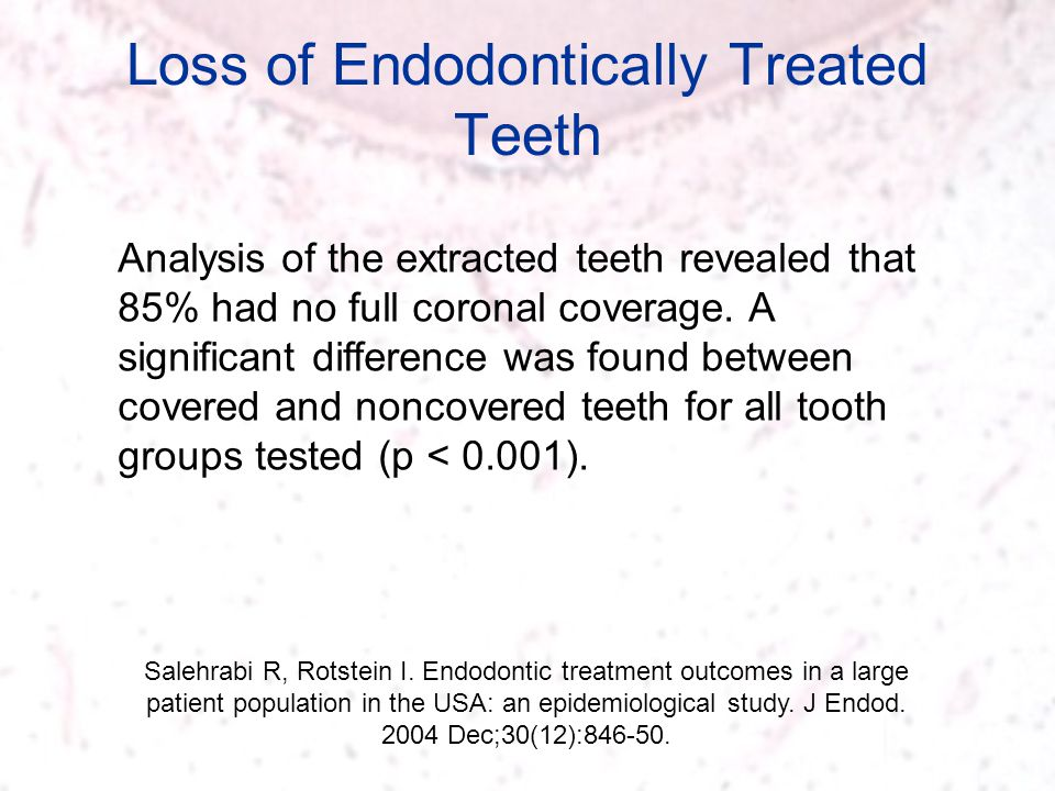 Loss of Endodontically Treated Teeth