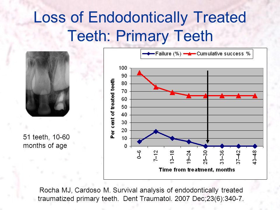 Loss of Endodontically Treated Teeth: Primary Teeth