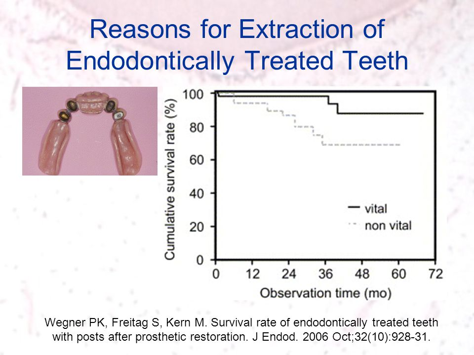 Reasons for Extraction of Endodontically Treated Teeth