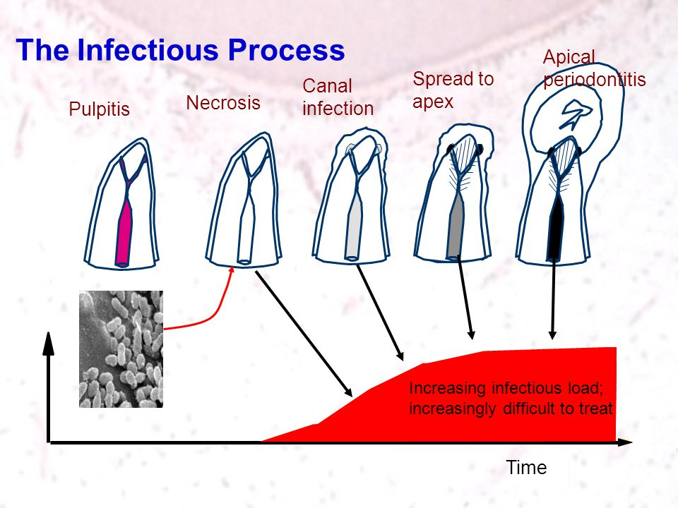 The Infectious Process