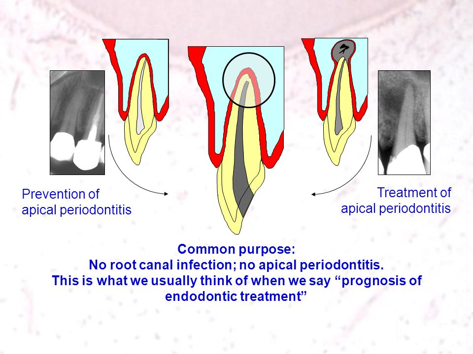 Prevention of apical periodontitis