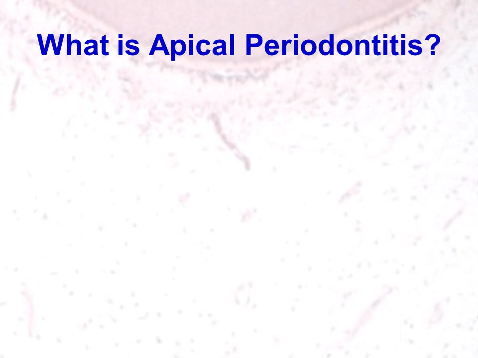 What is Apical Periodontitis
