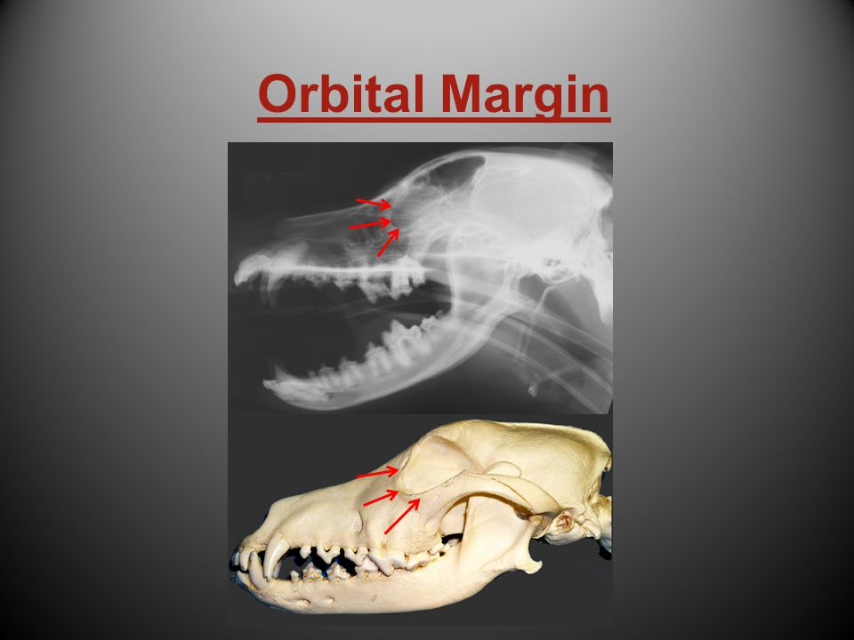 Orbital Margin