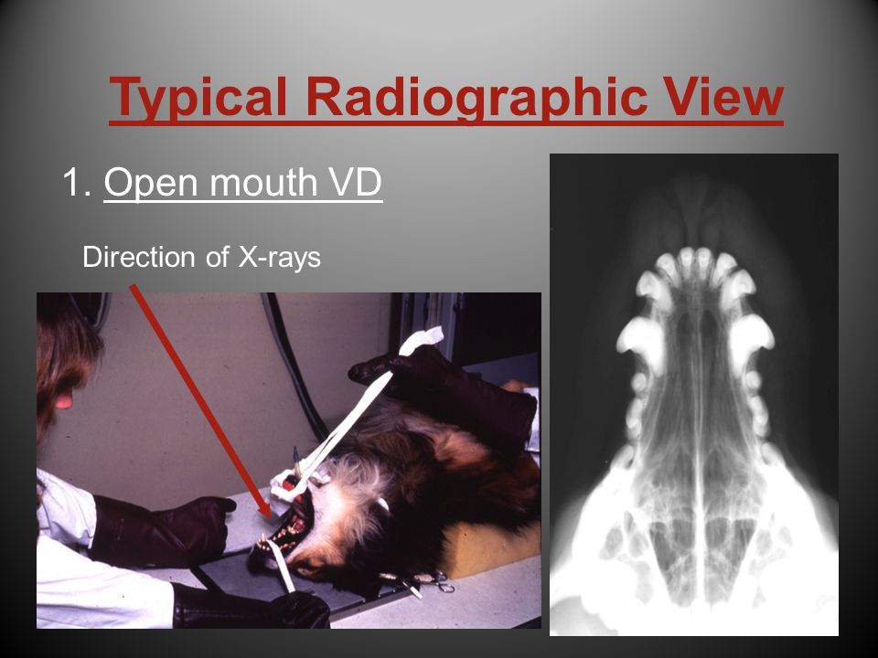 Skull radiographic anatomy 3164885 - follow4more.info