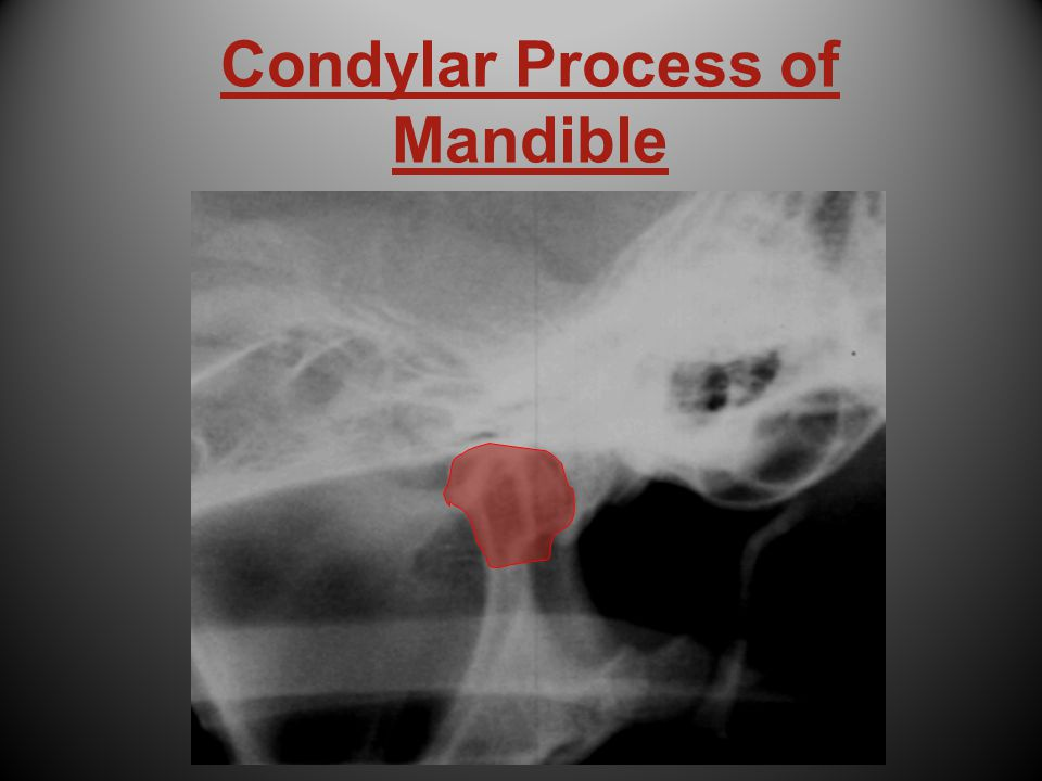 Condylar Process of Mandible