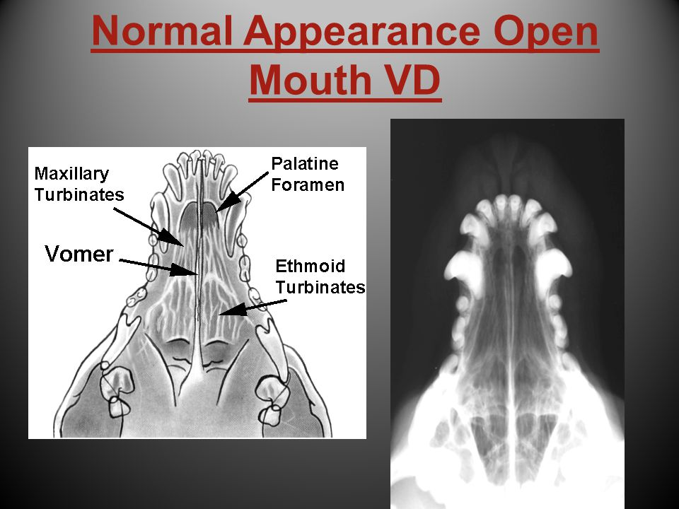 Normal Appearance Open Mouth VD