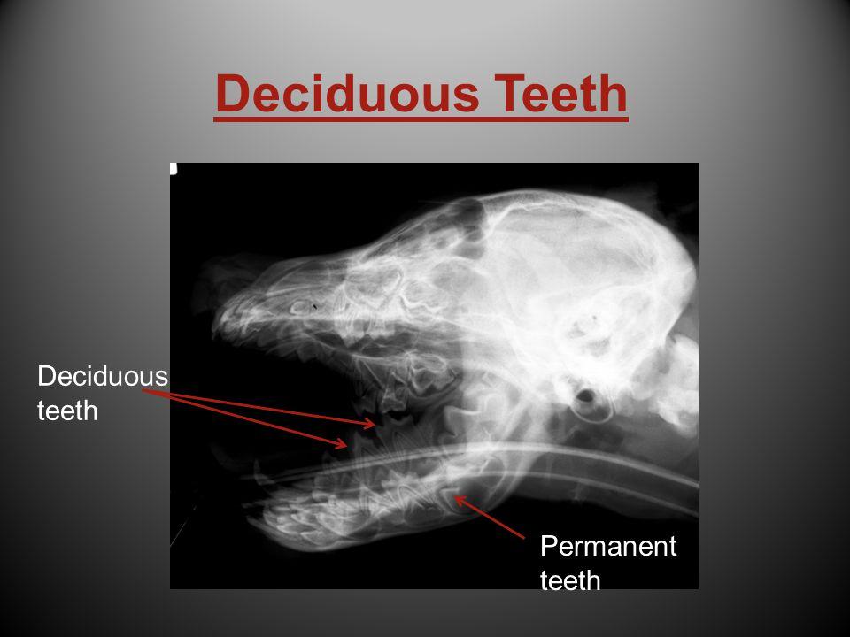 Deciduous Teeth Deciduous teeth Permanent teeth Permanent teeth