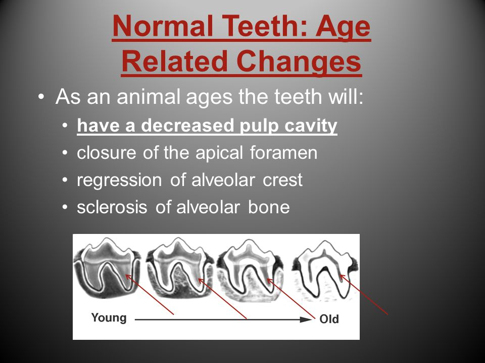 Normal Teeth: Age Related Changes