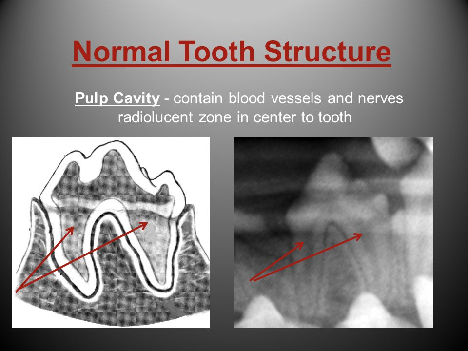 Normal Tooth Structure