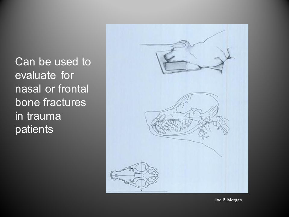 Can be used to evaluate for nasal or frontal bone fractures in trauma patients