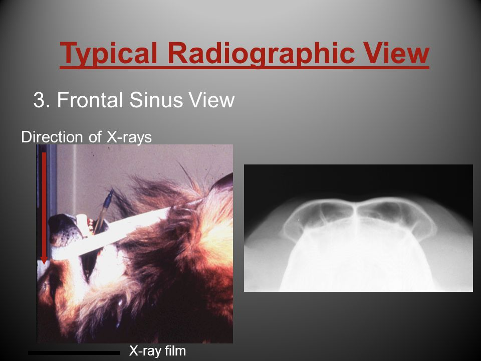 Typical Radiographic View