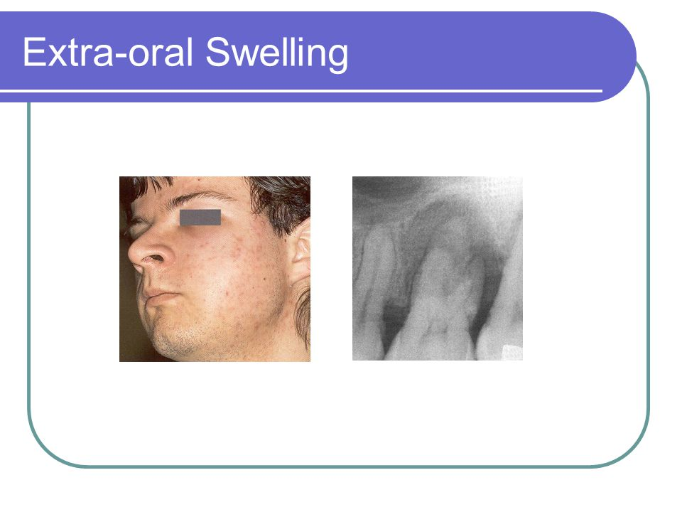 Extra-oral Swelling