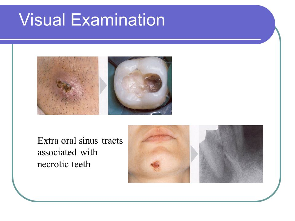 Visual Examination Extra oral sinus tracts associated with necrotic teeth