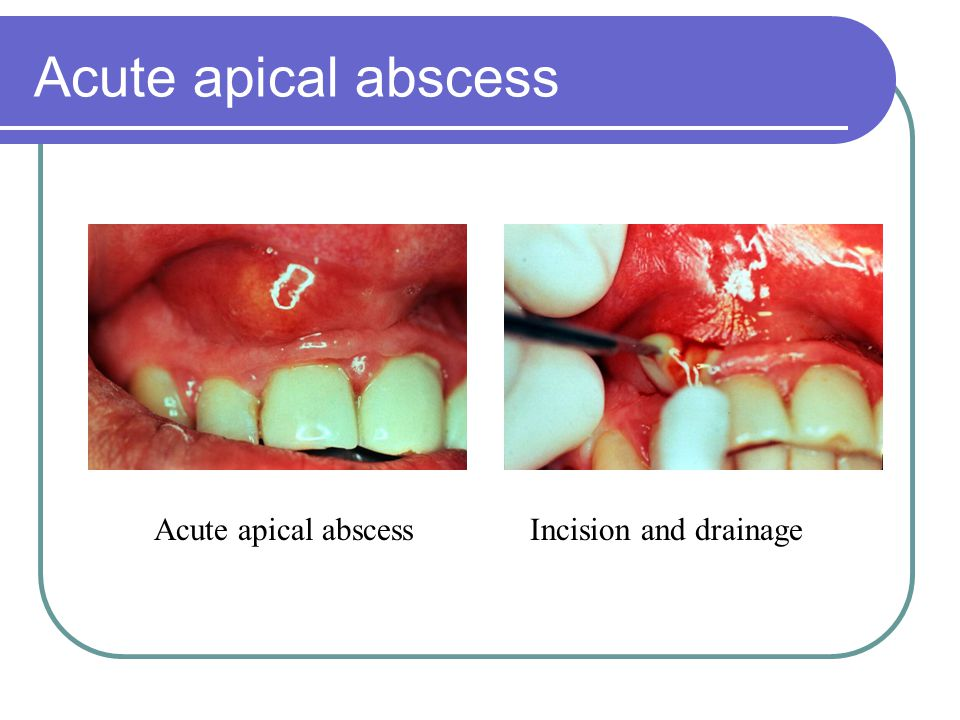 Acute apical abscess Acute apical abscess Incision and drainage