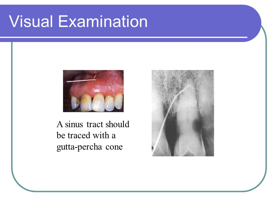 Visual Examination A sinus tract should be traced with a gutta-percha cone