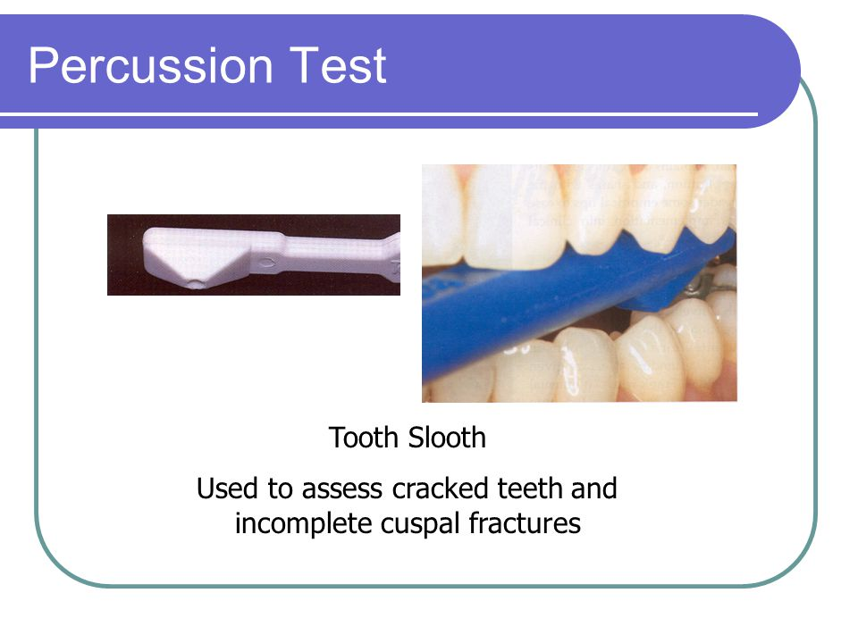 Used to assess cracked teeth and incomplete cuspal fractures