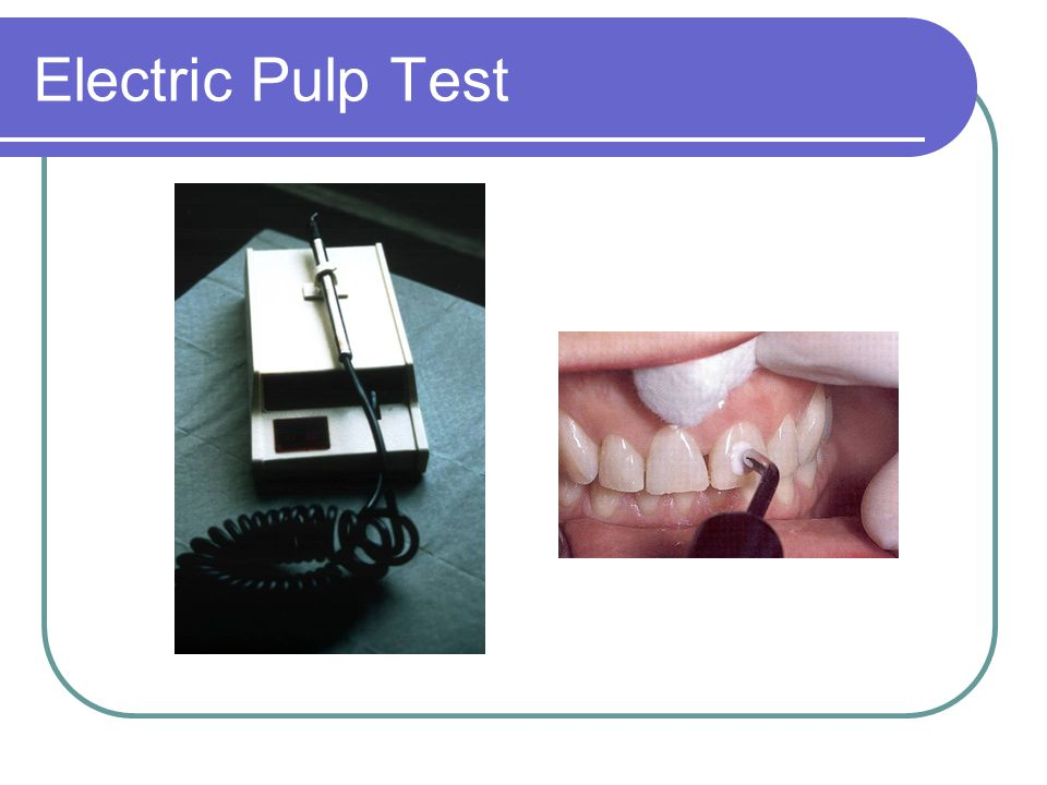 Electric Pulp Test
