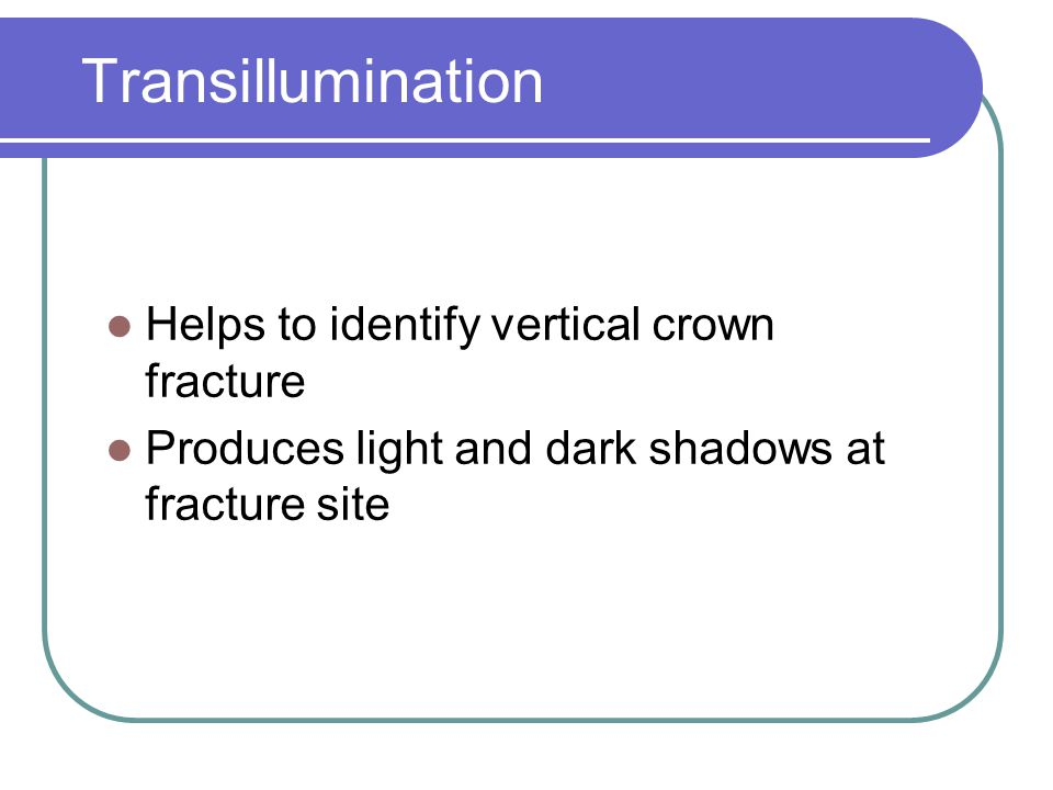 Transillumination Helps to identify vertical crown fracture